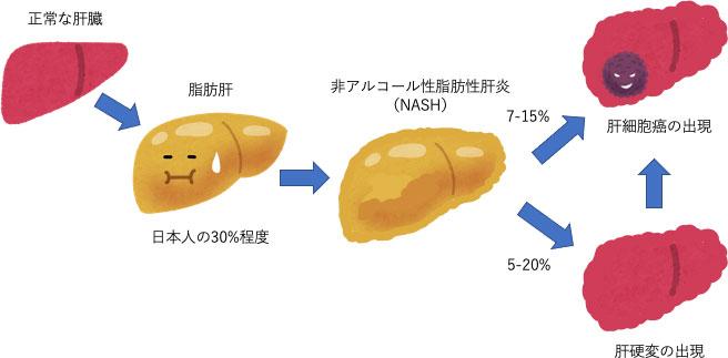 図2:非アルコール性脂肪性肝疾患の病期